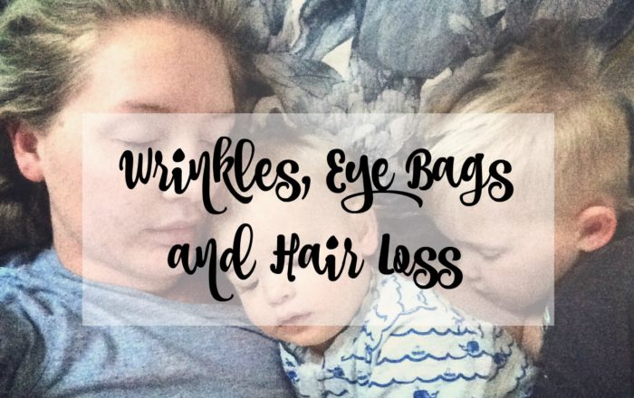 Wrinkles, Eye Bags And Hair Loss – The Joys Of Having Kids
